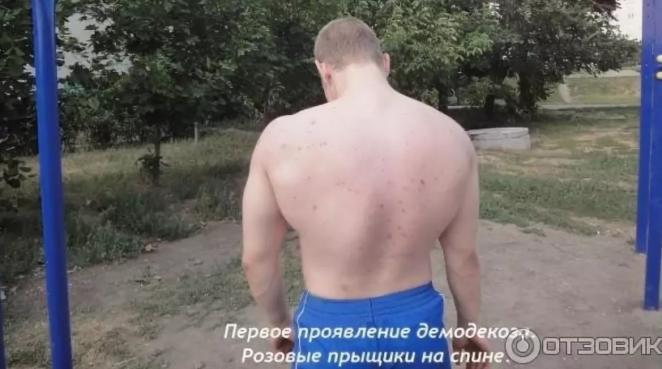 Лечение демодекоза на спине